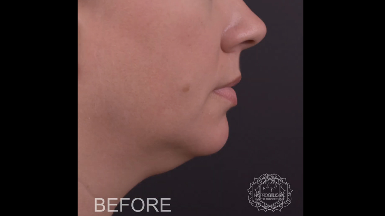 Neck Liposuction Atlanta