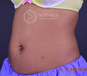 CoolSculpting Atlanta
