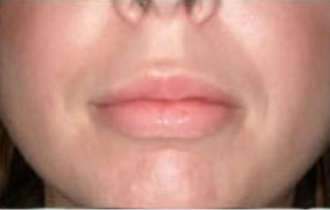 Non-Surgical Lip Augmentation