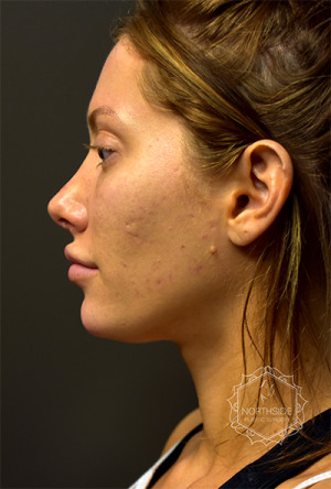 Non-Surgical Chin Augmentation, Northside Plastic Surgery