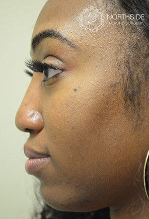 Non-Surgical Rhinoplasty | Northside Plastic Surgery