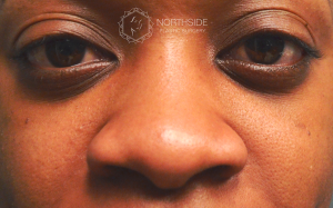 Ethnic Rhinoplasty, Northside Plastic Surgery